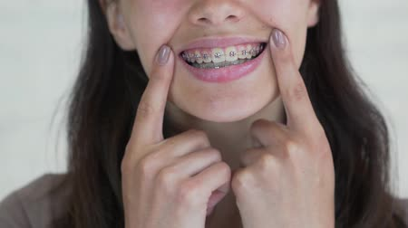 brackets : Young girl with braces on teeth looking at camera and smiling. Close up.