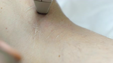 silme : Man gets underarm laser hair removal