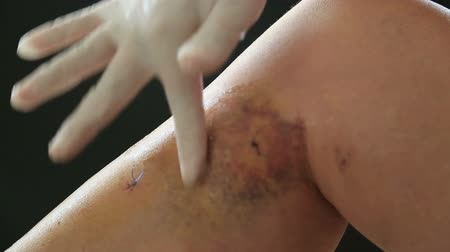 veia : Female leg after the surgery with medical compression socks. Postoperative suture on the skin with blue threads and iodine