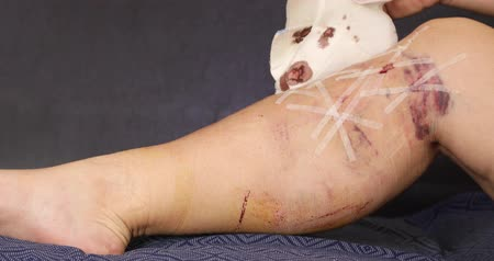 opção : Female patient leg after the medical varicose veins surgery Stock Footage