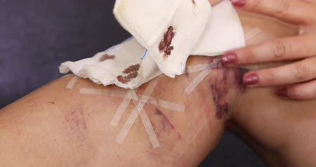cilt bakımı : Female patient leg after the medical varicose veins surgery Stok Video