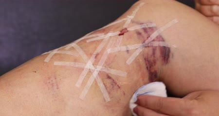 bandage : Female patient leg after the medical varicose veins surgery Stock Footage