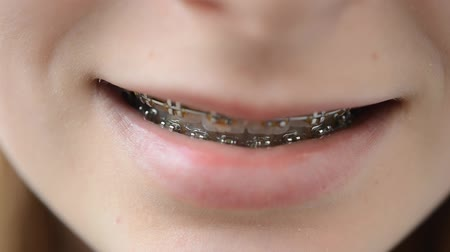 белить : Briquettes on teeth. The girl the teenager in briquettes. Стоковые видеозаписи