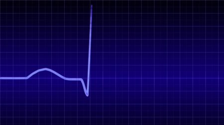 oran : electrocardiogram of a human heartbeat Stok Video