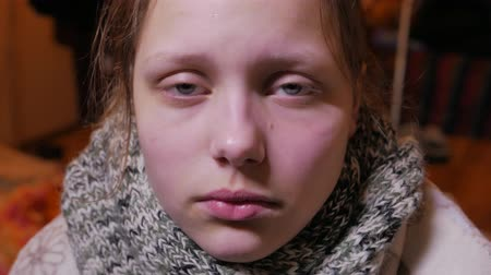 грипп : Teen girl having a flu or cold. Стоковые видеозаписи