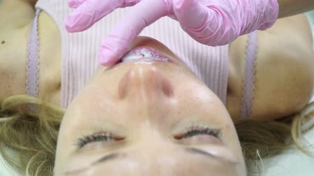 zalf : Woman at the beauticians salon during lip augmentation procedure. Stockvideo