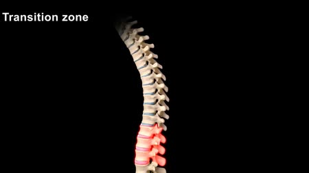 medical scan : Vertebra spine transition region, compression fracture, 3D Animation