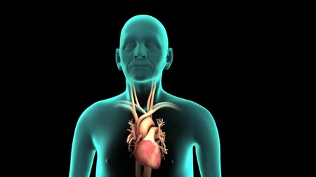 colesterol : Cardiac catheterization, Stent into body 3D animation