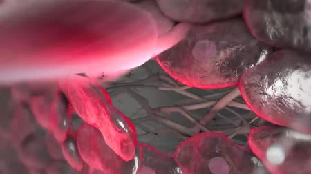 arter : Atherosclerosis Causes Heart Attack Stok Video