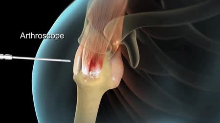 травма : arthroscopic rotator cuff surgery
