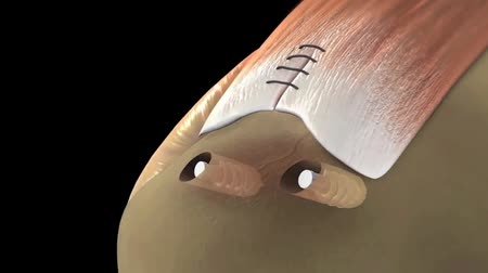 mandzsetta : arthroscopic rotator cuff surgery