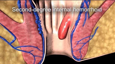 stomache : Hemorrhoid formation 3D animation