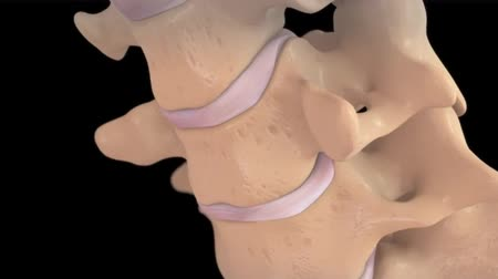 anatomický : Cervical Disc Injury