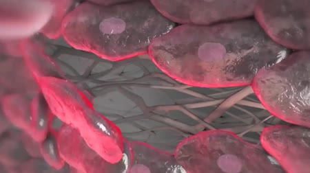 restenosis : Coronary atherosclerotic disease 3D animation Stock Footage