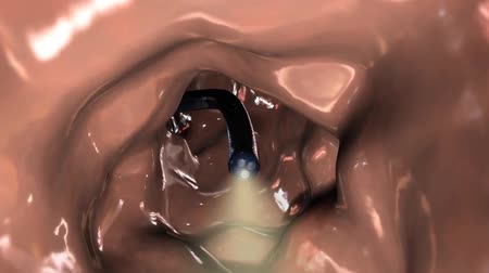 tumeur : Animation 3D Coloscopie Biopsie du tractus gastro-intestinal Les patients