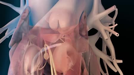 heart failure : Atrial Fibrillation 3D animation