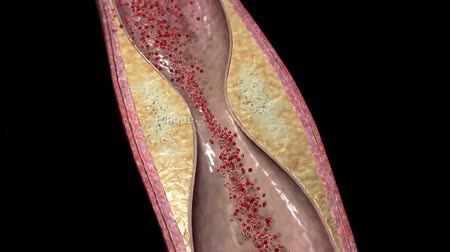 damarlar : Plaque clogged artery.3D animation