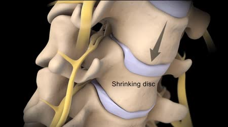 anatomický : Cervical Disc, Prolapse of intervertebral disc