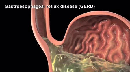 nariz : 3D Animated gastroesophageal reflux disease
