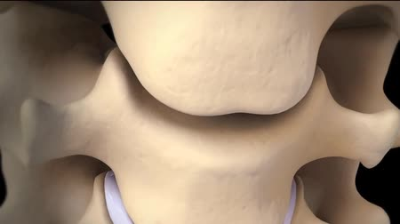 tomography : Cervical Disc Replacement 3D animation Stock Footage