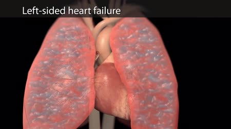 heart failure : 3D Animated right-sided heart failure - beating heart Stock Footage