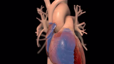heart failure : 3D Animated Congestive Heart Failure