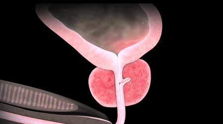 стимул : Animation of Benign Prostatic Hyperplasia