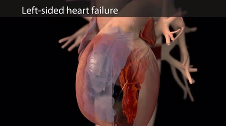 pacemaker : 3D Animation of left-sided heart failure Stock Footage