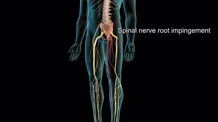 ortopedia : Spinal nerve root impingement - 3D animation Wideo