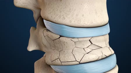 nerves : 3D animation of the spine fracture