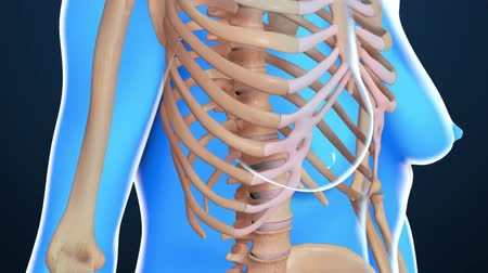 inflammation : Medical animation of Vertebral spine bone with osteoporosis Stock Footage
