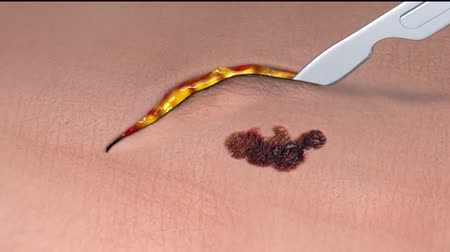 scalpel : Surgical Removal Of Mole Cutting By The Suspicious Skin