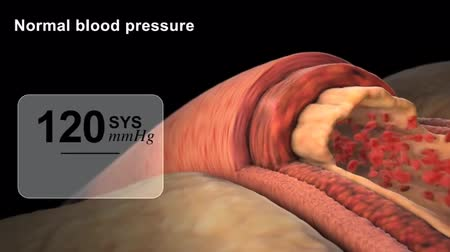 restenosis : animation of blood pressure