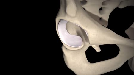kalça : 3D animation of Rheumatoid arthritis of hip joint Stok Video