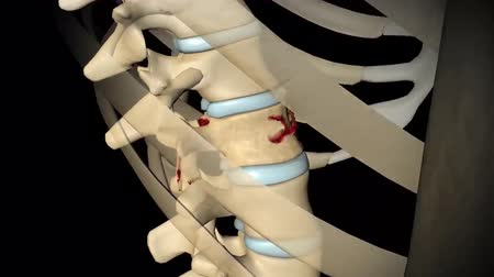 fisiologia : 3D animation of spine fructure.Spinal Compression Fractures