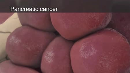 the magnification : 3D animation of pancreatic cancer. Growing Exocrine tumor and endocrine tumor