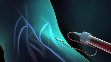 визуализация : 3D animation of doctor aspirating venous blood from cephalic in a procedure