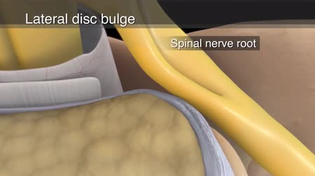 faceta : 3D animatied spinal nerve root impingement Stock Footage