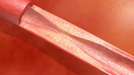 angioplasty : Stent angioplasty procedure