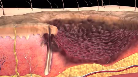 sc : 3D Animation of skin wound Stock Footage