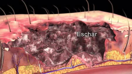 incapacidade : Medical animation definition of Eschar