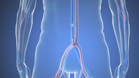 triglycerides : Cardiac catheterization, Stent into body Stock Footage