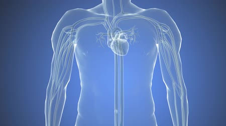 eu : Cardiac catheterization, Stent into body Vídeos