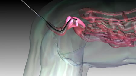 oncology : colonoscope 3d medical animation