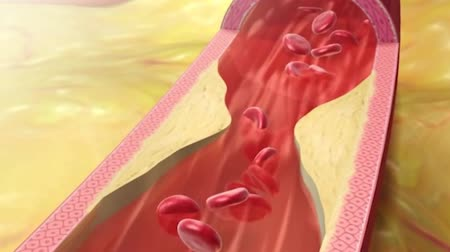 blood circulation : Atherosclerosis: Cholesterol Plaque In Artery