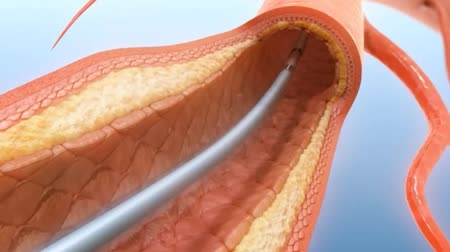 angioplasty : 3D animation of Balloon angioplasty procedure
