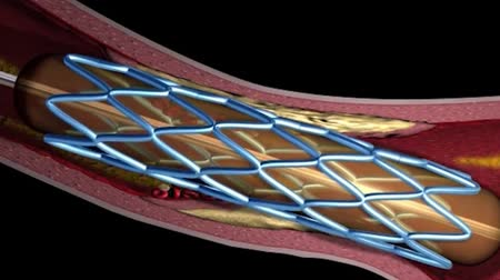 chirurgie : 3D animation of Balloon angioplasty procedure