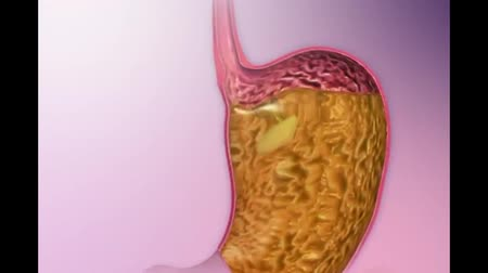 játra : The Digestive System Esophagus, Stomach, Small Intestines, Esophageal Ulcer