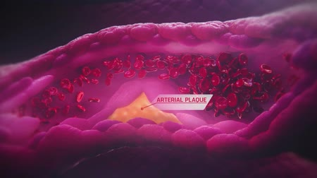 clogged : Atherosclerosis: Cholesterol Plaque In Artery