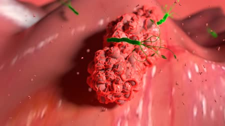 macrophage : 3D Medical aimation of Tumor vascularization